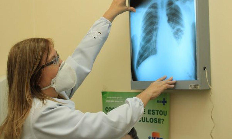 pesquisadores-do-brics-buscam-interconexoes-entre-tuberculose-e-covid