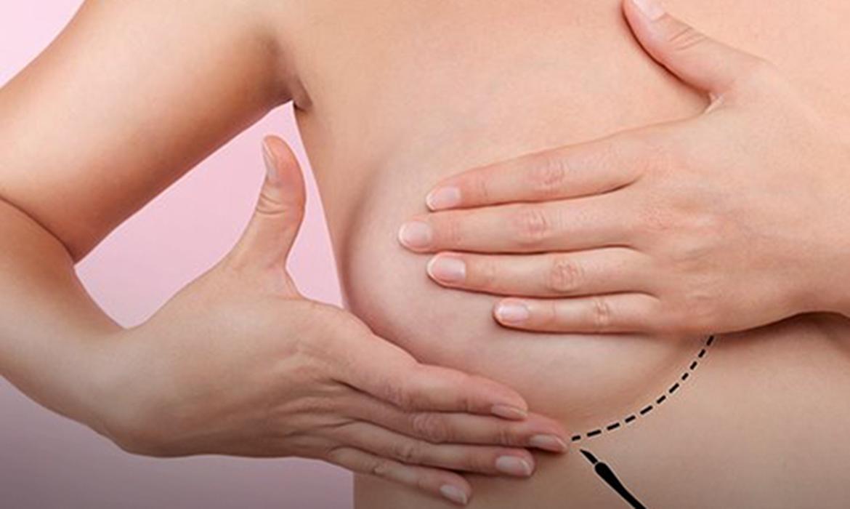 tratamento-pode-fazer-cancer-de-mama-regredir-seis-vezes-mais-rapido