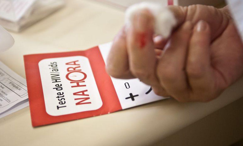 usp-participara-de-rede-global-para-encontrar-a-cura-do-hiv