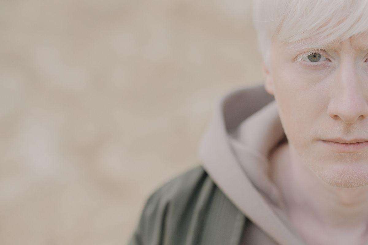 em-10-anos,-85-pessoas-morreram-por-problemas-associados-ao-albinismo